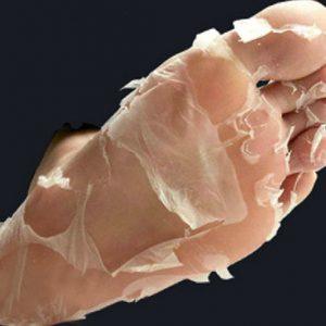 Deep Exfoliation Foot Peel